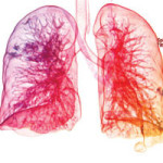 Health Effects of Indoor Air Pollutants