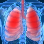 Indoor Air Pollution and Asthma